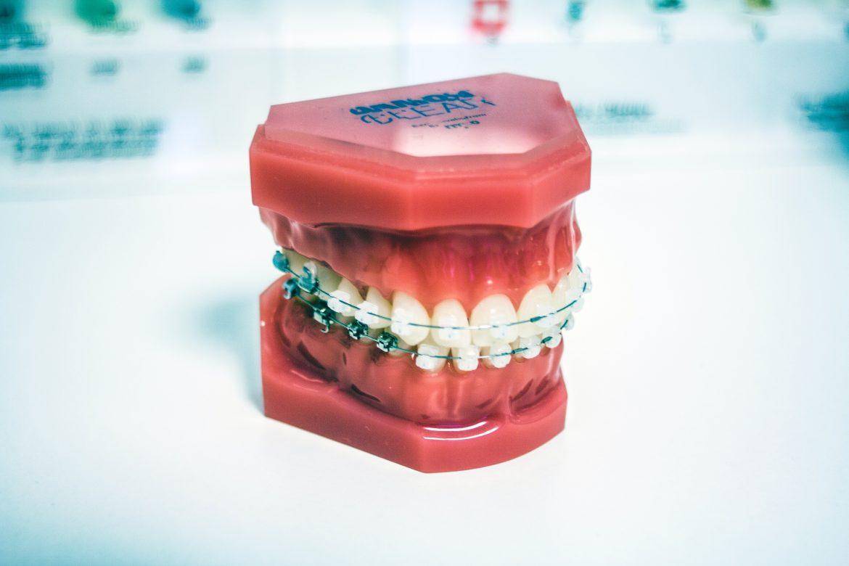 Prothèse dentaire